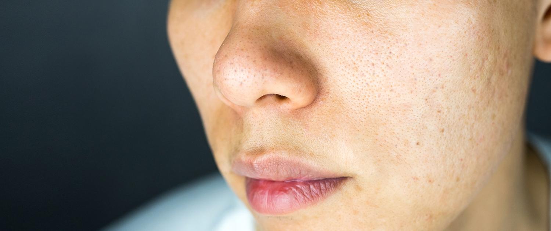 Komedonenakne, auch Acne comedonica, ist altersunabhängig und kann in jedem Lebensalter vorkommen. Kennzeichen: Mitesser